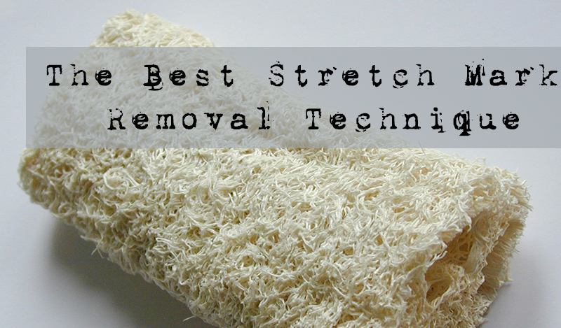 How to Remove Stretch Marks | A tried and true Method!